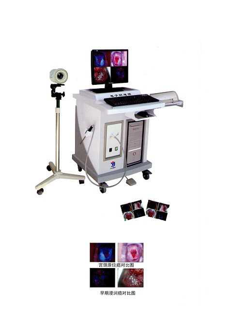 荧光数码电子阴道镜