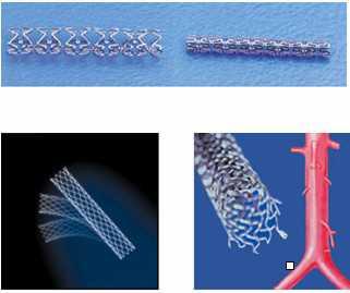 血管支架精密喷涂系统
