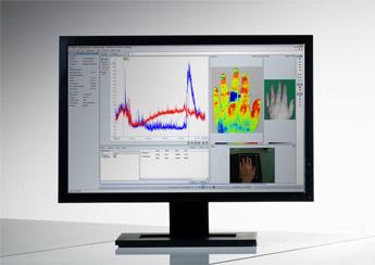 血流灌注成像仪软件 PIMSoft