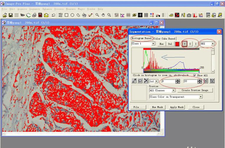 免疫组化阳性率分析