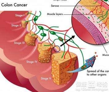 hsa-mir-**在结肠癌细胞中的功能研究
